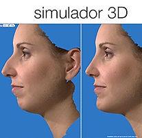 rinoplastia-con-simulador-3D.jpg