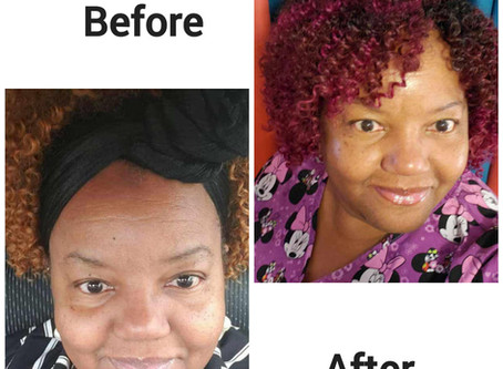 Some Before/After Photos...Using Just Moringa Soap & Oil