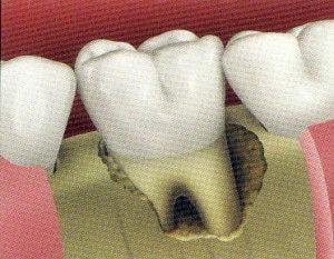 implant1-300x233.jpg