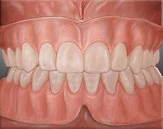 full_dentures.png