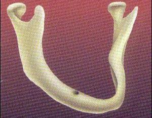 implant6-300x233.jpg
