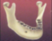 implant5-300x233.jpg