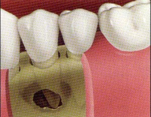 implant2-300x233.jpg