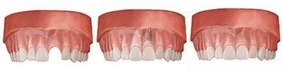 single_tooth_rest_implant_horizontal.jpg