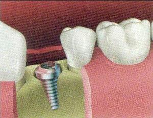 implant4-300x233.jpg