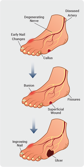 Foot ulcer-01.png
