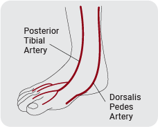tibial-01.png