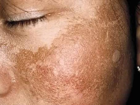 Homoeopathic treatment for blotches or freckles on face(चेहरे पर झाईयों के लिए होम्योपैथिक दवा)