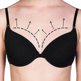 BreastImplants2_edited.jpg
