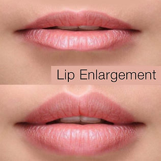 Beautiful Lips 2 copy.jpg