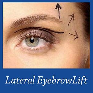 Eyebrow Lift 2.jpg