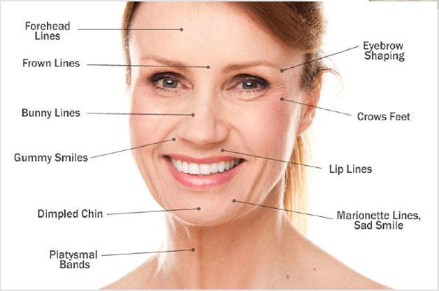 Botox Diagram 2.jpg