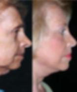 Face-Lift2.jpg