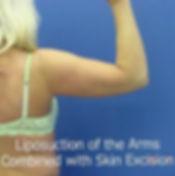 Arms45.jpg