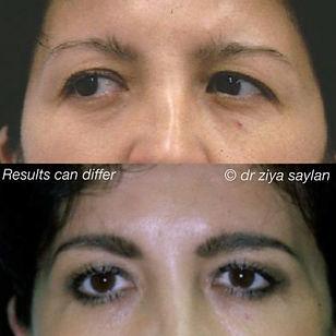 Eyes54.jpg