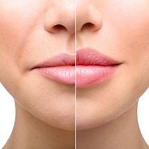 Lips-2.jpg