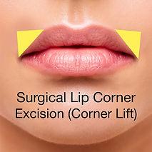Lip corner lift 3c.jpg