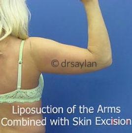 Arms45_edited.jpg