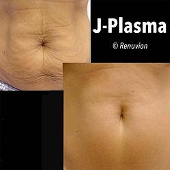 JPlasmaPage6.jpg