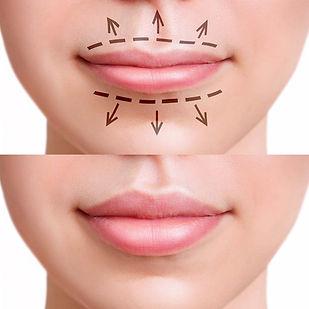 Beautiful Lips 3 copy.jpg