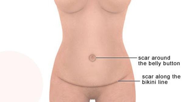 Abdominoplasty_scars.jpg