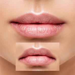 Lip corner lift 2.jpg
