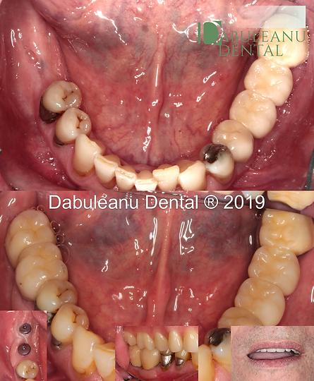DI Molars.png
