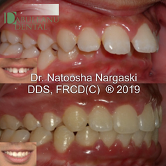 Moderate skeletal dysplasia (deficiently growing lower jaw) presenting with excessive overjet and overbite in a growing young patient was treated with a combination of a growth modifying functional appliance and comprehensive fixed orthodontics with traditional metal braces. The result showed a beautiful smile in conjunction with the correction of the lower jaw deficiency for a much improved chin position and profile appearance.