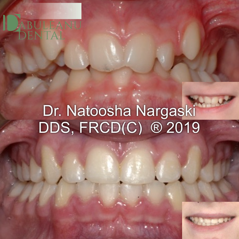 Moderate crowding of both jaws and a mild skeletal discrepancy in a young patient was treated with non-extraction comprehensive fixed orthodontic appliances using traditional metal braces.
