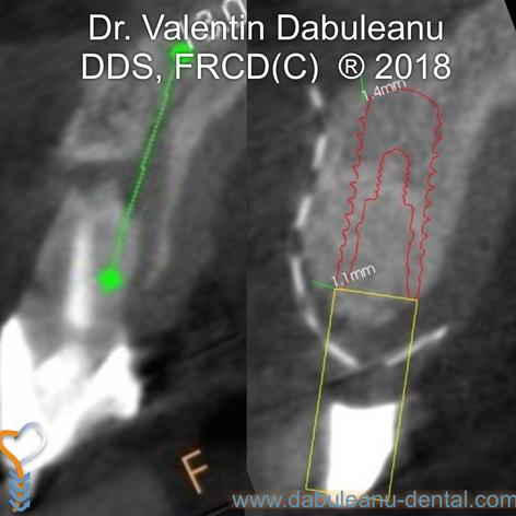 Bone Graft - Lateral Ridge Augmentation