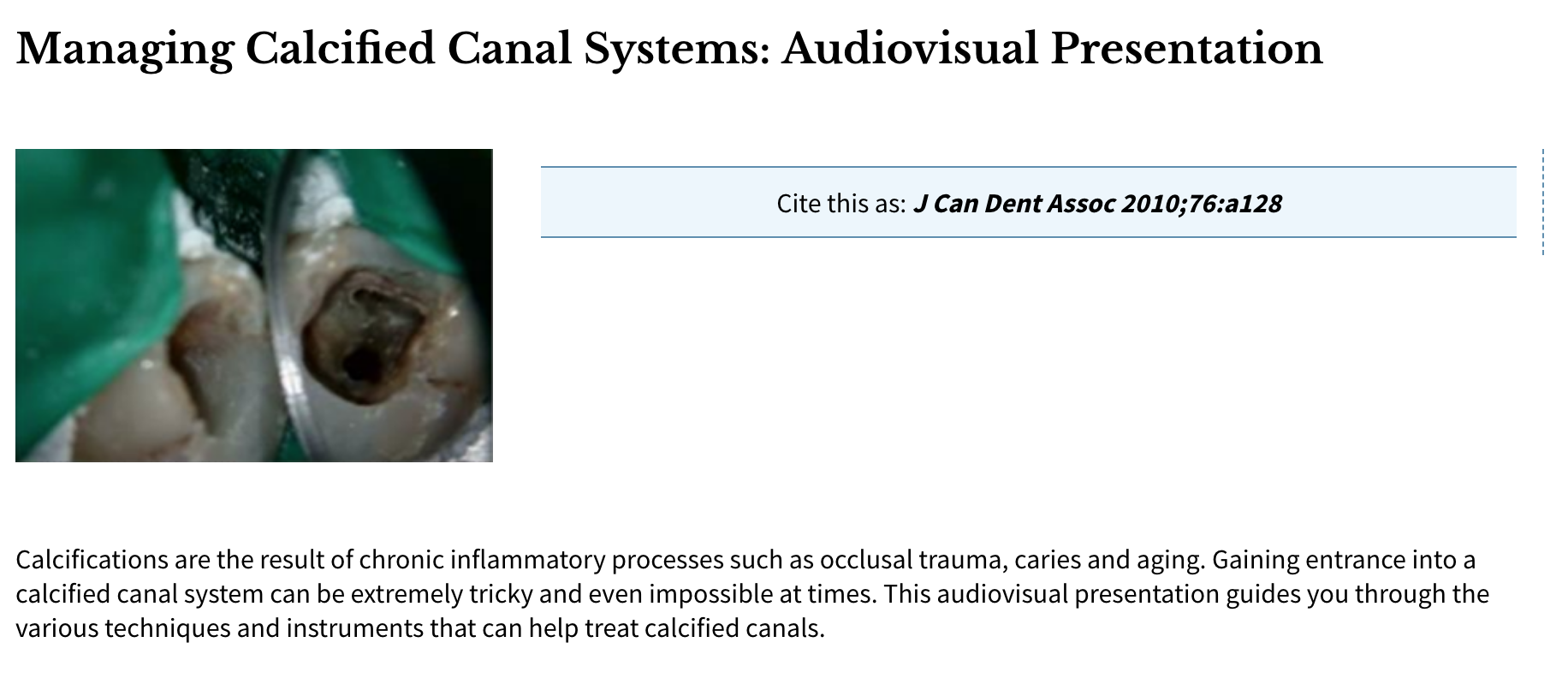 Dr. Mary Dabuleanu - Webinar: Managing Calcified Canal Systems