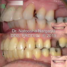 Overlapped teeth, excessive overbite and overjet in a 63 year old patient with multiple missing teeth and a history of periodontal (gum) disease was treated with comprehensive fixed orthodontic appliances using clear ceramic braces. Close monitoring and joint treatment with a periodontist ensured a beautiful ad healthy smile.