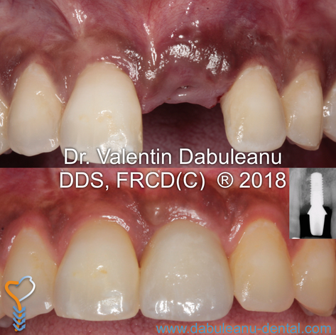 Implant Replacement - Anterior Tooth