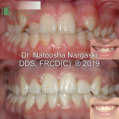 Severe crowding in the upper jaw in a young patient was treated using an expander to broaden the upper jaw and create space for the blocked out canine teeth. Comprehensive fixed orthodontics with traditional metal braces followed to achieve a beautiful smile without the need for extractions.