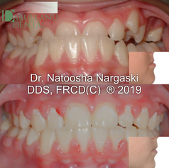 A moderate skeletal discrepancy due to a slower growing upper jaw than lower jaw resulting in an underbite and upper crowding in a growing young patient was treated using limited (just a few front teeth) fixed traditional metal braces and growth modification using an expander and face mask. The results showed relief of the crowding and correction of the underbite.