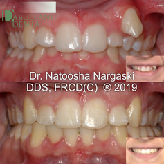 Severe upper jaw crowding with a blocked out upper left canine tooth and deep bite in a young adult was treated with an extraction of a premolar and comprehensive fixed orthodontics using traditional metal braces.