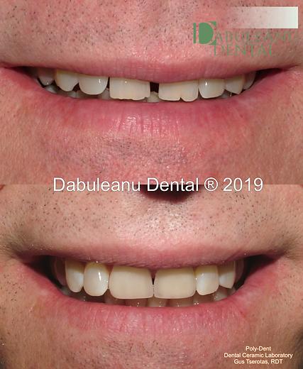 Diastema Closure1.png