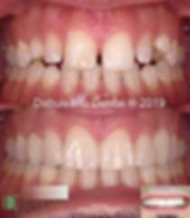 B - Upper Anterior Esthetic Reconstructi