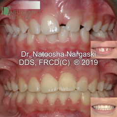 11 year old boy with an impacted (stuck) upper left central incisor. Comprehensive fixed non-extraction orthodontic treatment with traditional metal braces was carried out to bring in the tooth and align the occlusion and smile.
