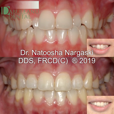 Crowding and blocked out teeth in crossbite in an adult was treated with a combination of extractions of premolars and comprehensive fixed orthodontic appliances using clear ceramic braces.