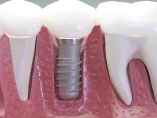 Implantes dentales: respuestas a las dudas más frecuentes de los pacientes