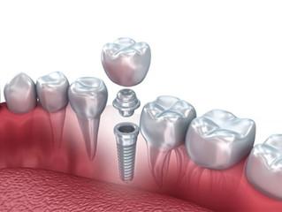 Procedimientos y precio justo, todo lo que un paciente debe saber sobre implantes dentales.