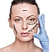 Pigmentation, acne, skin tightening