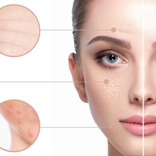 Skin Dehydration Wharf Clinic