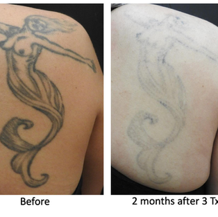Wharf clinic Tattoo Removal