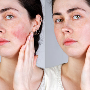 Skin Redness:Rosacea Wharf Clinic