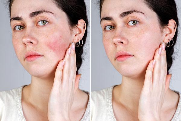 Skin Redness:Rosacea Wharf Clinic.jpg