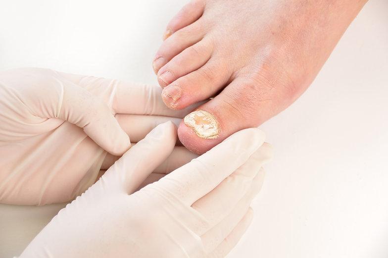 Nail Fungus Wharf Clinic.jpg