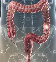 colonoscopy colon scope 264.jpg