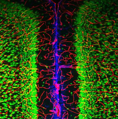 Neurons (green), Astrocytes (blue), and Capillaries (red)